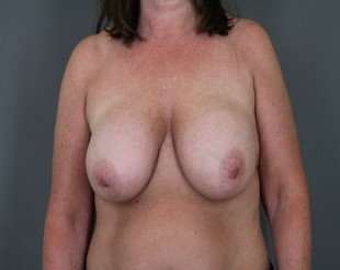 Breast Lift Patient 5
