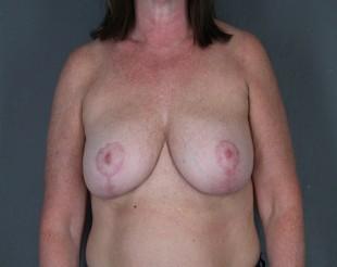 Breast Implant Exchange Patient 7