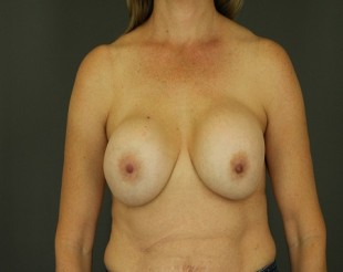 Complex Revisionary Breast Case 3