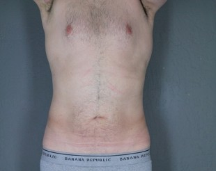 Male Patient Liposuction 13