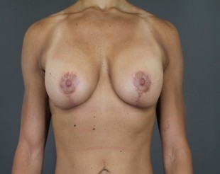 Complex Revsionary Breast Case 4