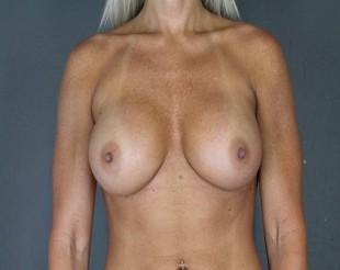 Implant Exchange Patient 8