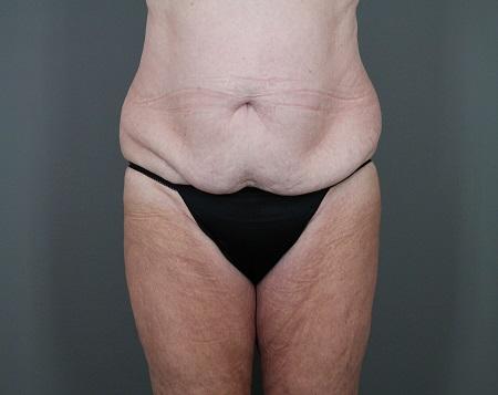 Tummy Tuck Patient 20