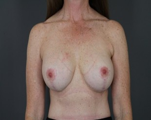 Complex Revisionary Breast Case Patient- 5