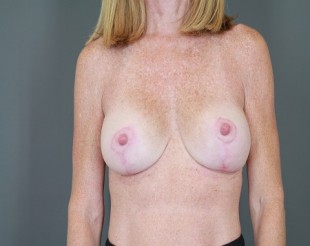 Breast Augmentation with Lift Patient 26