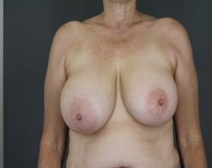 Breast Reduction Patient 13