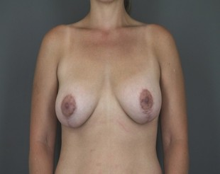 Breast Augmentation with Lift Patient 27