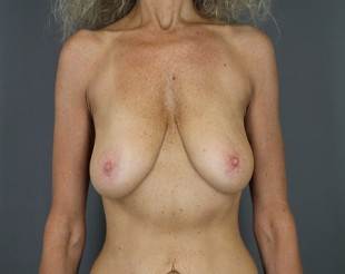 Breast Augmentation with Breast Lift Patient 28