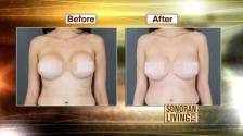 Dr Flint - Sonoran Living Live Breast Augmentation