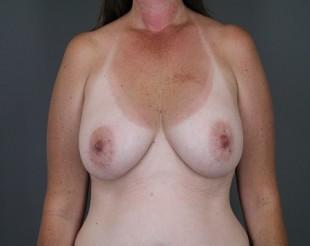 Breast Implant Exchange Patient 9
