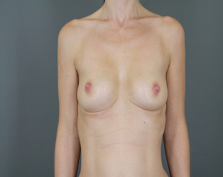 Breast Augmentation with Lift Patient 30