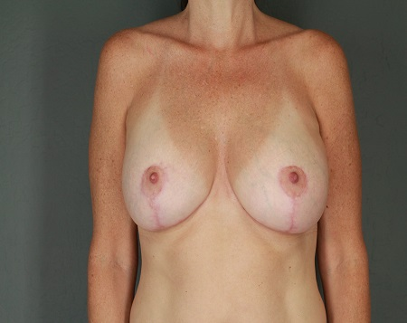 Breast Augmentation with Lift Patient 31