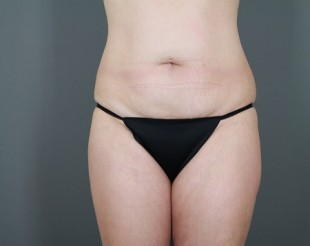Tummy Tuck Patient 20