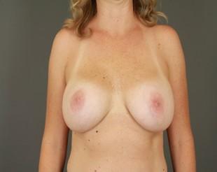 Breast Implant Exchange Patient 10