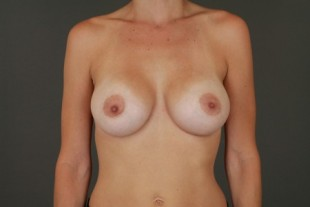 Breast Augmentation 40