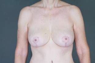 Breast Lift 5