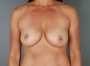 Breast Augmentation 41