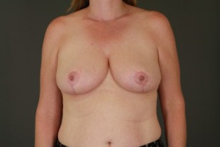 Breast Reduction 14