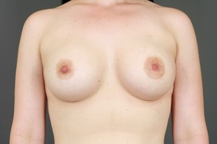 Breast Augmentation 28 2