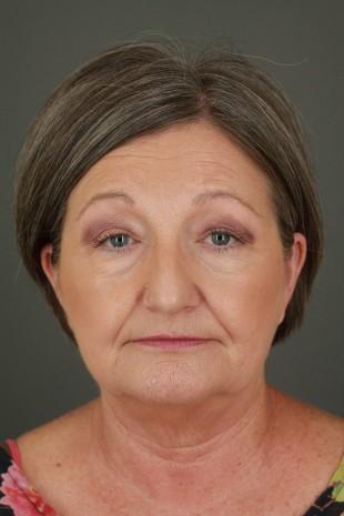 Facelift Patient 53