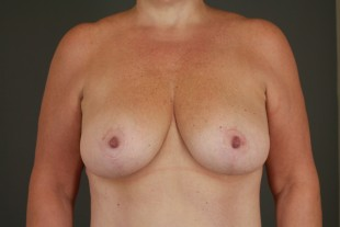 Breast Lift 6