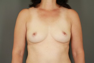 Breast Augmentation 42
