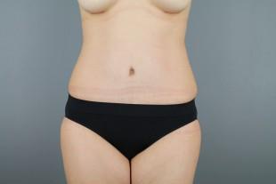 Tummy Tuck 31