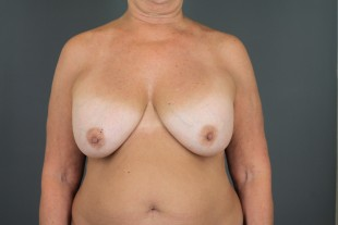 Breast Implant Exchange 11