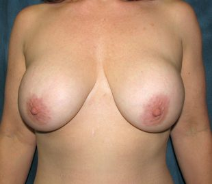 Implant exchange with a breast lift