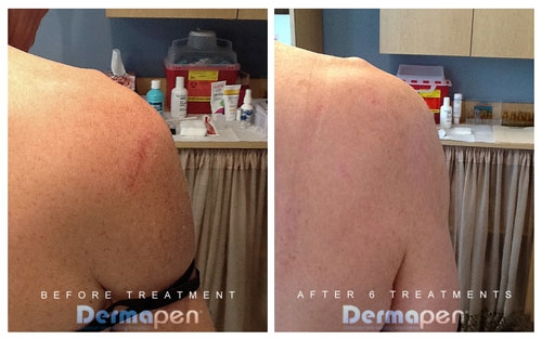 Dermapen Before & After