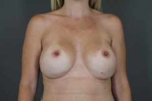 Complex Revisionary Breast Case 8