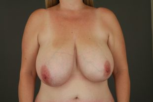Breast Reduction 16