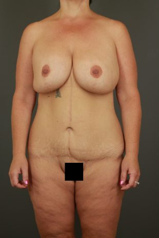 Massive Weight Loss Patient 3