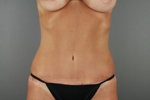 Tummy Tuck 35