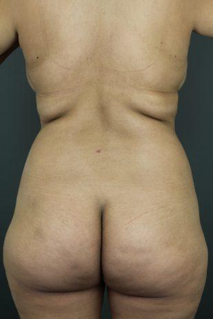 Liposuction 12