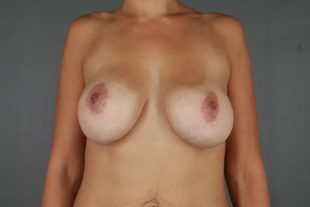 Complex revisionary Breast Surgery 11
