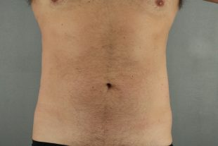 Male Liposuction 4