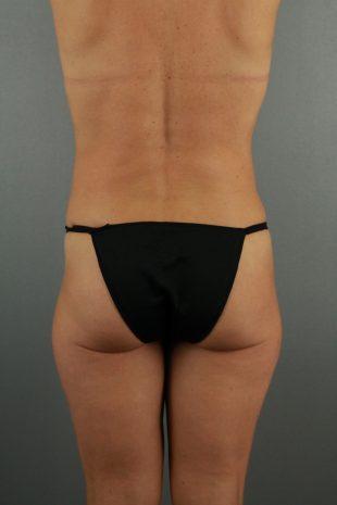 Female liposuction