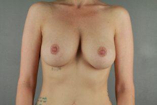Breast Implant Exchange 17