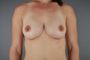 Breast Augmentation client 13