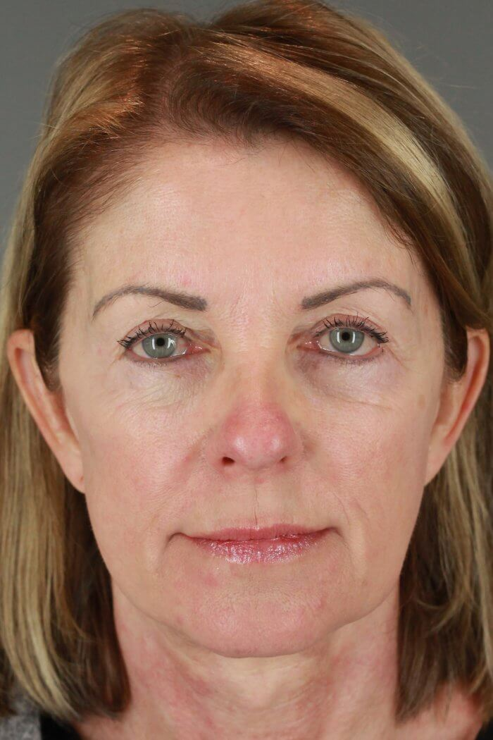 Client 67 Face lift with upper and lower eyelid lift