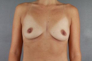 Client 114 Breast Augmentation